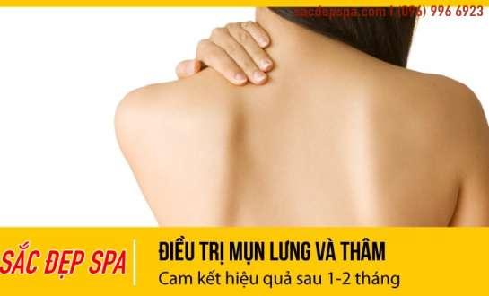 Spa trị mụn lưng và vết thâm hiệu quả